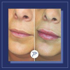 Aumento de labios - Dr. José María Triviño Fernández
