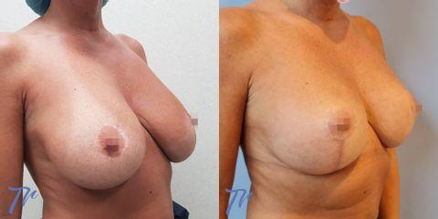 Reducción de senos - Dr. José María Triviño Fernández