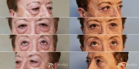Blefaroplastia - Dr. José María Triviño Fernández