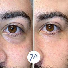 Eliminación de ojeras - Dr. José María Triviño Fernández