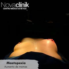Mastopexia Novaclinik