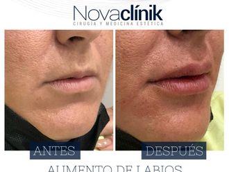 Aumento labios - 800436