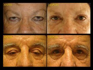 Antes y después de microcirugía de párpados