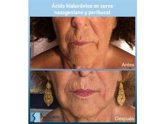 Ácido hialurónico-699817