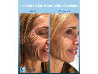 Ácido hialurónico-701084