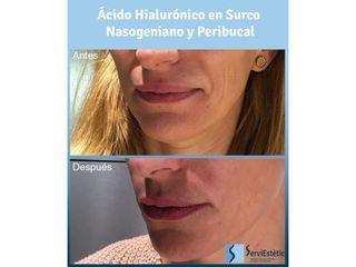 Ácido hialurónico - Servi Estétic