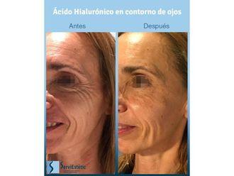 Ácido hialurónico-701086
