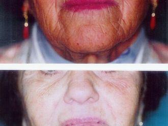 Rellenos faciales-329817