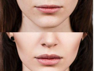 Aumento labios-625718