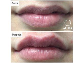 Aumento labios - 650876