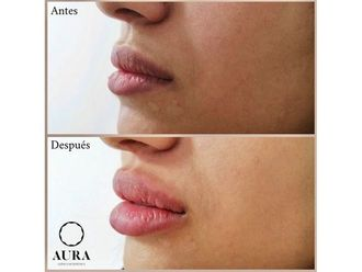 Aumento labios-650878