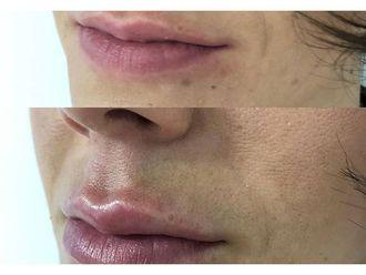 Aumento labios-650881