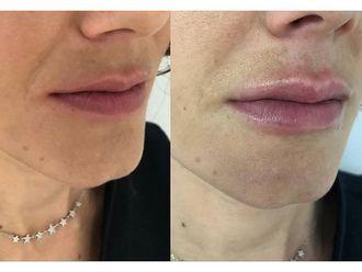 Aumento labios-650882