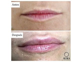 Aumento labios-650883