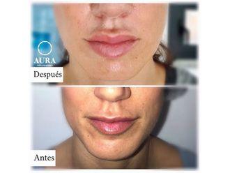Aumento labios-650884