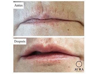 Aumento labios-650885