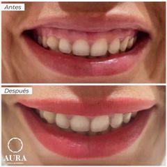 Antes y después Aumento de labios - Aura Clínica