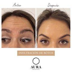 Antes y después Bótox - Aura Clínica