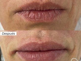 Aumento labios-737238