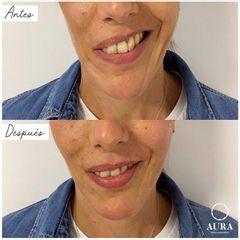 Antes y después Ácido hialurónico - Aura Clínica