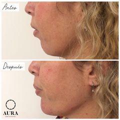 Antes y después Aumento de mentón - Aura Clínica
