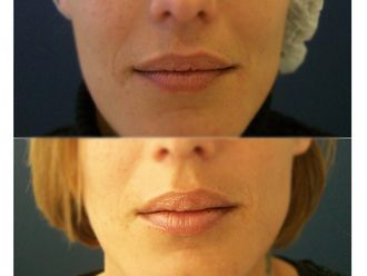 Aumento labios-648219