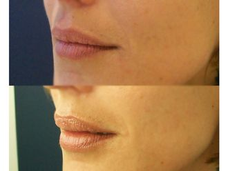 Aumento labios-648220