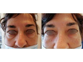 Antes y después Eliminación de ojeras con ácido hialurónico - Dra. Arrom