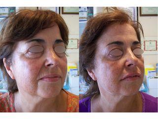 Antes y después Ácido hialurónico - Dra. Arrom