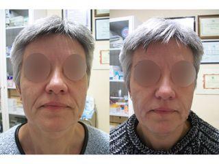 Antes y después Surcos nasogenianos - Dra. Arrom