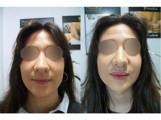 Antes y después Aumento de labios - Dra. Arrom