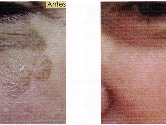 Tratamiento antimanchas-295767