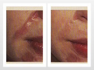 Corrección cicatrices-299800
