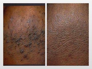 Antes y después Tratamiento foliculitis C