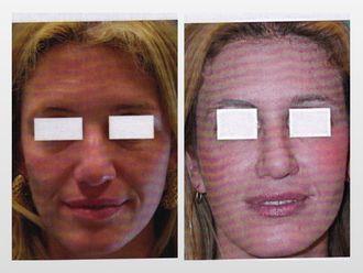 Rejuvenecimiento facial-299807