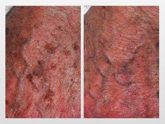 Tratamiento antimanchas-299808