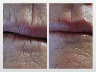 Aumento labios-299813