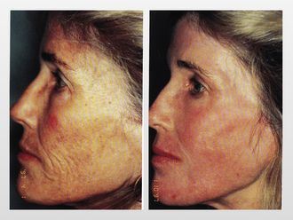 Rejuvenecimiento facial-299814
