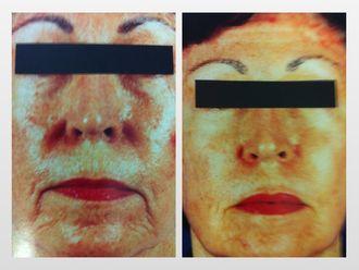 Rejuvenecimiento facial-299815