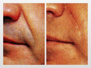 Antes y después Surcos nasogenianos
