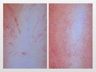 Tratamiento varices-299817
