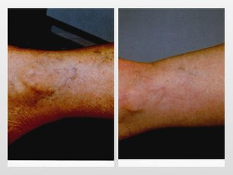 Tratamiento varices-299818