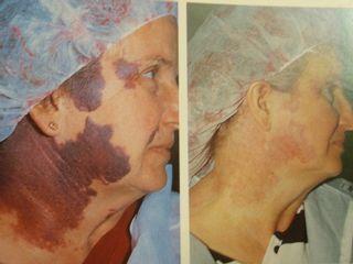 Antes y después Hemangioma