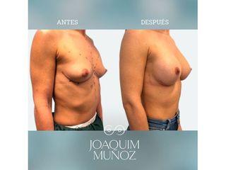 Aumento de pecho - Dr. Joaquim Muñoz I Vidal