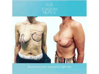 Reconstrucción mamaria - Dr. Joaquim Muñoz I Vidal