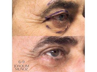 Blefaroplastia - Dr. Joaquim Muñoz I Vidal