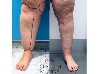 Tratamiento de Lipedema - Dr. Joaquim Muñoz I Vidal