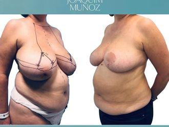 Reducción senos-738698