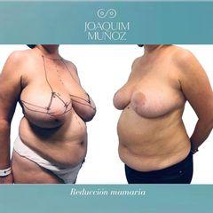 Reducción de senos - Dr. Joaquim Muñoz I Vidal