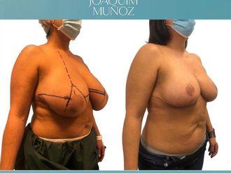 Reducción senos-738701
